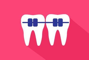 علم تقويم الأسنان المعوجة