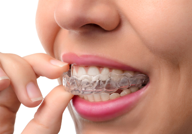 Everything You Need To Know About Invisalign