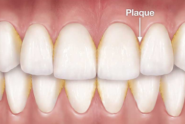 How to Prevent Plaque and Tartar