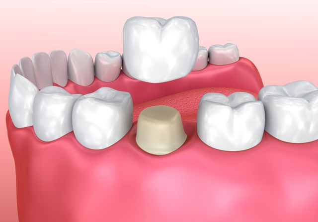 Why You Should Need a Dental Crown