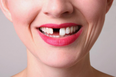 Consequences of Not Replacing Missing Teeth