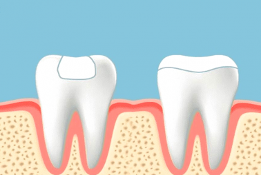 Inlays & Onlays to Restore Decayed Teeth